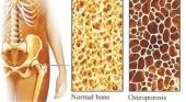 La osteoporosis también puede afectar a niños y adolescentes