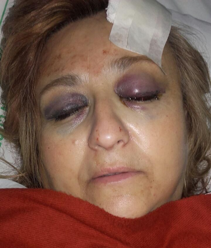 Brandsen: Violador atacó con un bate de béisbol a los padres de una de sus víctimas