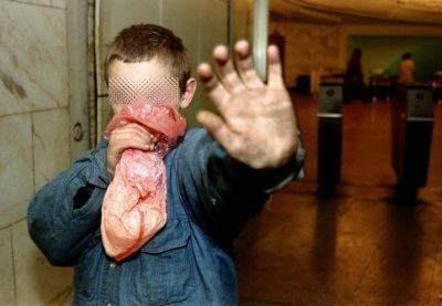 Preocupa relación entre consumo de Paco y tuberculosis