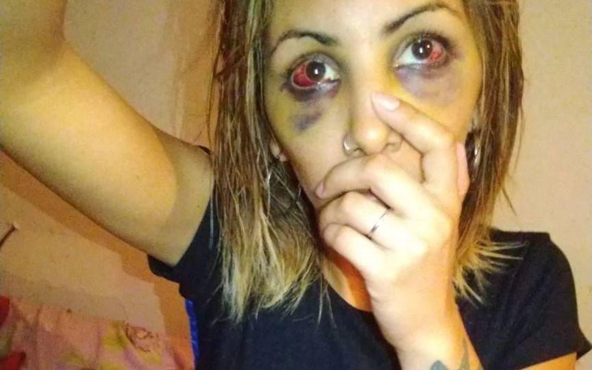 """Golpeó brutalmente a su ex pareja y la amenazó: """"Agradecé que no te pegué un tiro"""""""