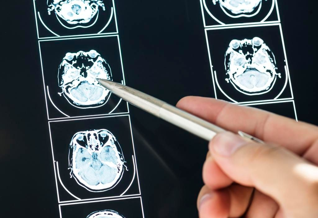 La ciencia avanza contra los tumores cerebrales más agresivos