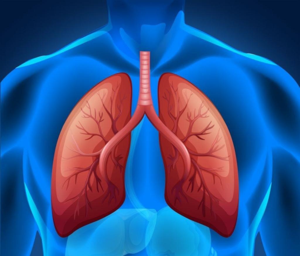 Cáncer de pulmón: logran avances en sus estadios tempranos
