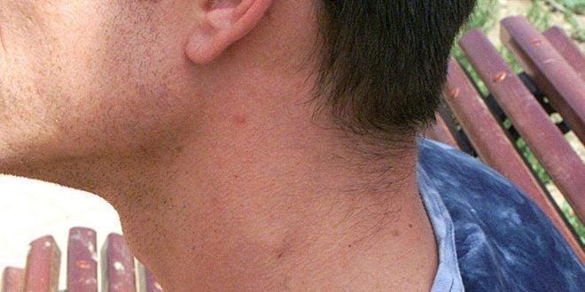 Ganglios linfáticos: ¿Qué es este bulto que tengo en el cuello?