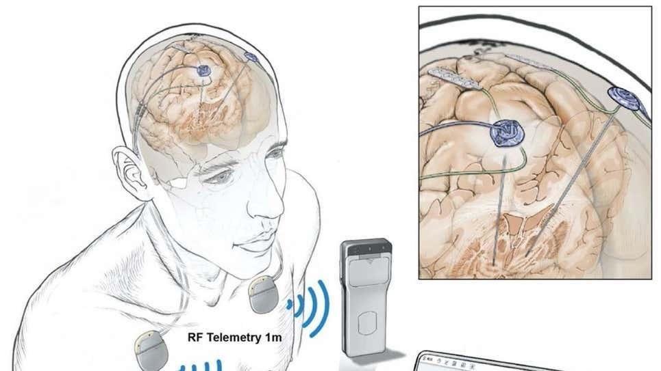 Cerebro rastreado: logran hacerlo de forma remota durante todo un día