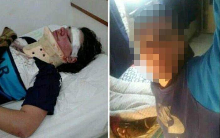 Dos nuevos casos de violencia de género en cuarentena: a una joven la atacaron con un fierro