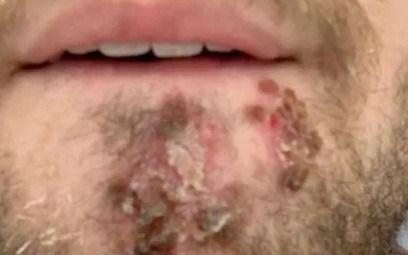 Por error usó la afeitadora de un amigo que pudo costarle la vida: ¿qué se contagió?