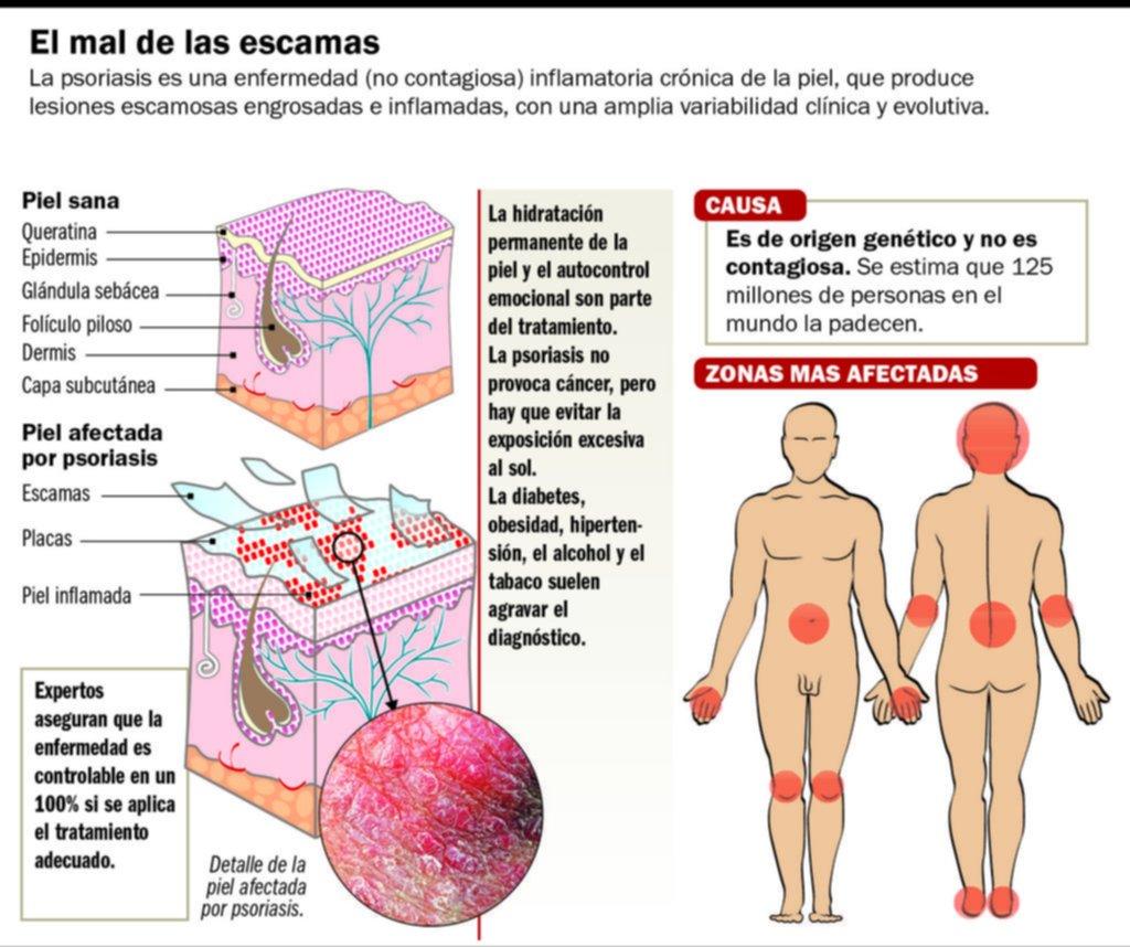 La psoriasis, un mal que deja huella no sólo en la piel sino también en la vida sexual