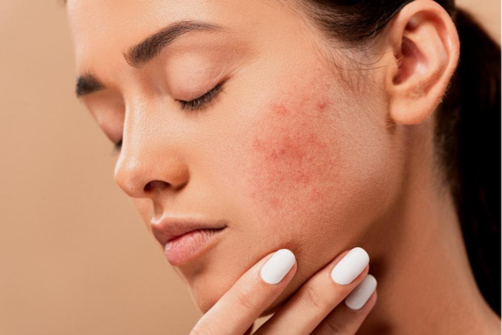 Cómo tratar la piel en cada etapa del ciclo