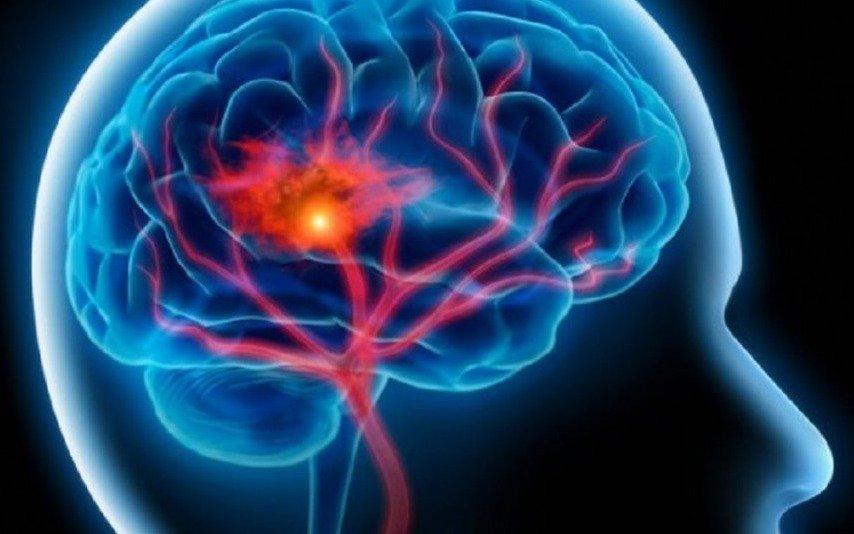 Llega una jornada de concientización sobre los accidentes cerebrovasculares
