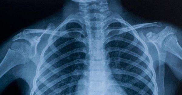 Realizan el primer trasplante de vertebras en el mundo