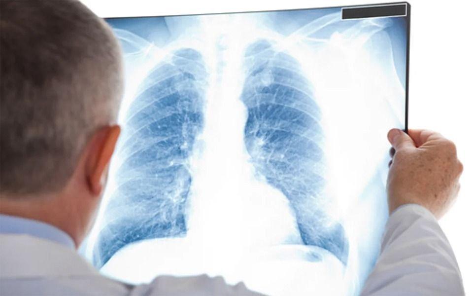 Otra advertencia por el sobrepeso: la grasa también se acumula en los pulmones