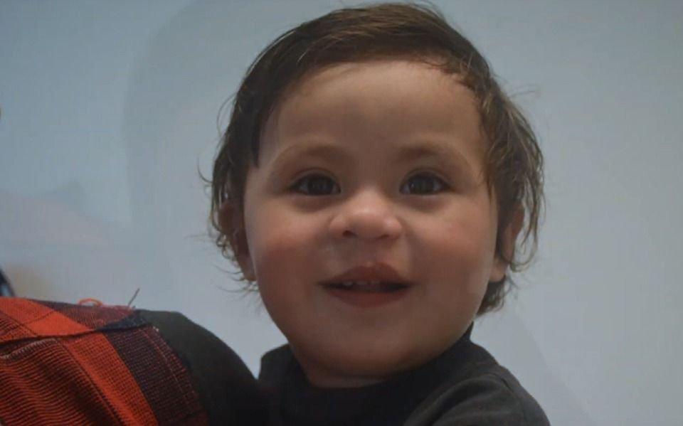 """Volver a tener sonrisa"": Buscan ayuda para operar a niños con labio leporino"