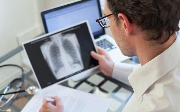 La tuberculosis en época de pandemia por COVID-19