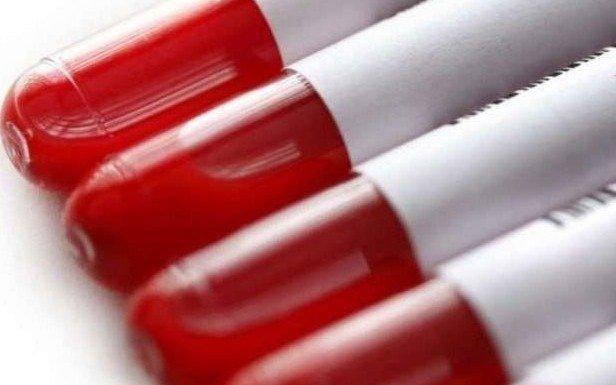 Contar con suficiente presencia de dadores de sangre en el país